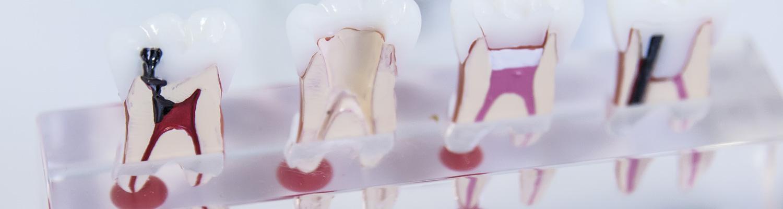 endodoncia en Centros clínicos dentales Jesús Caballero