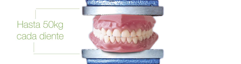 Bruxismo en Clínicas dentales Jesús Caballero