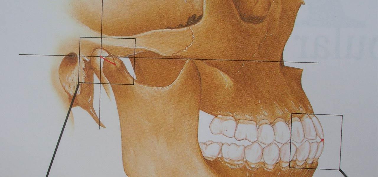 Articulación Temporomandibular (ATM). Síndrome de disfunción masticatoria.