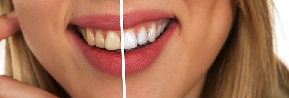 Motivos por las que tienes los dientes amarillos