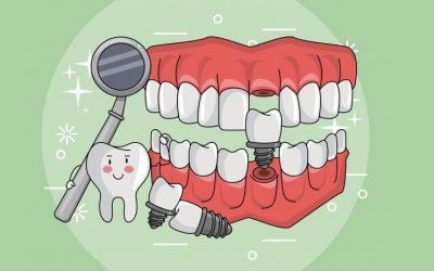 Cómo conseguir éxito en mis implantes