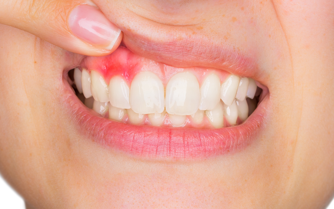 ¿Sabes detectar los primeros síntomas de problemas orales?