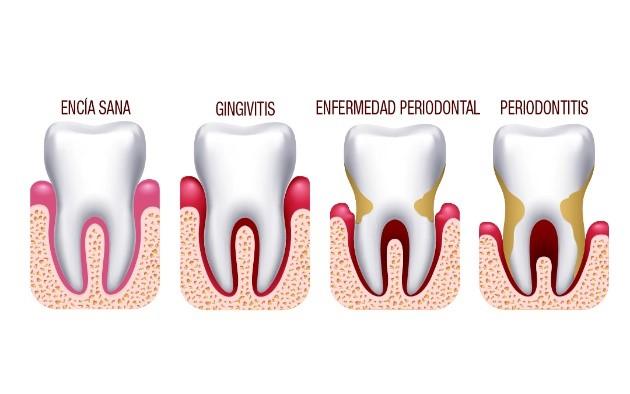 ¿Sabías que las personas con periodontitis o piorrea tienen casi 9 veces más posibilidades de morir si padecen COVID-19?