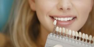 Blanqueamiento Dental clínicas dentales Jesús Caballero